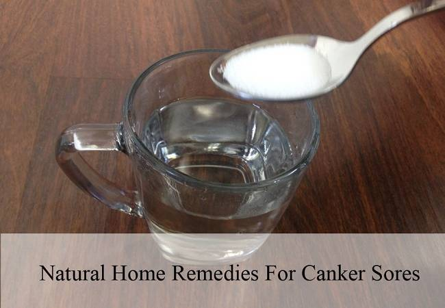 Natural Home Remedies For Canker Sores